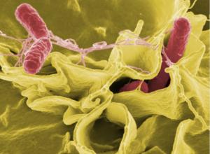 Zastavte šíření bakterií ve vaší kuchyni